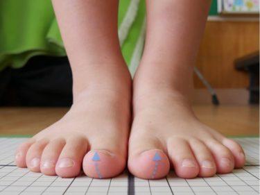 かがみ指(ハンマートゥ)の症状と治療方法
