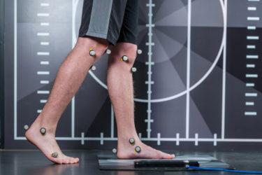 変形性膝関節症の術後に不満を抱く人は約半数|手術をせずに膝の痛みを取る方法