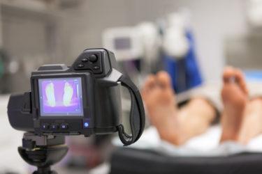 関節リウマチから寛解している患者では、体温が高いことが特徴